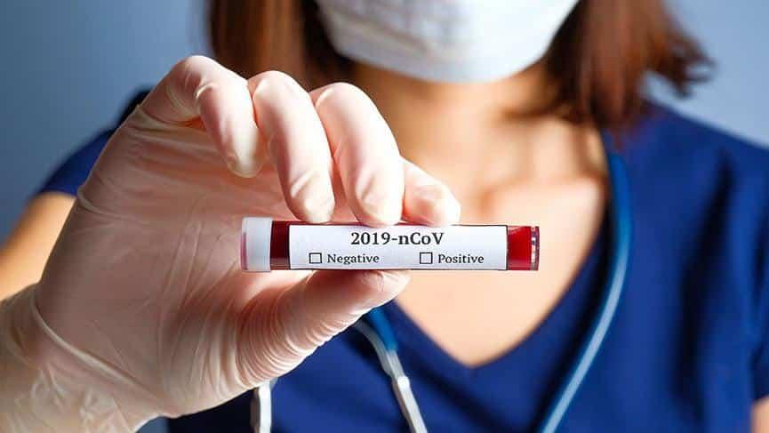 Corona Virüs Testi