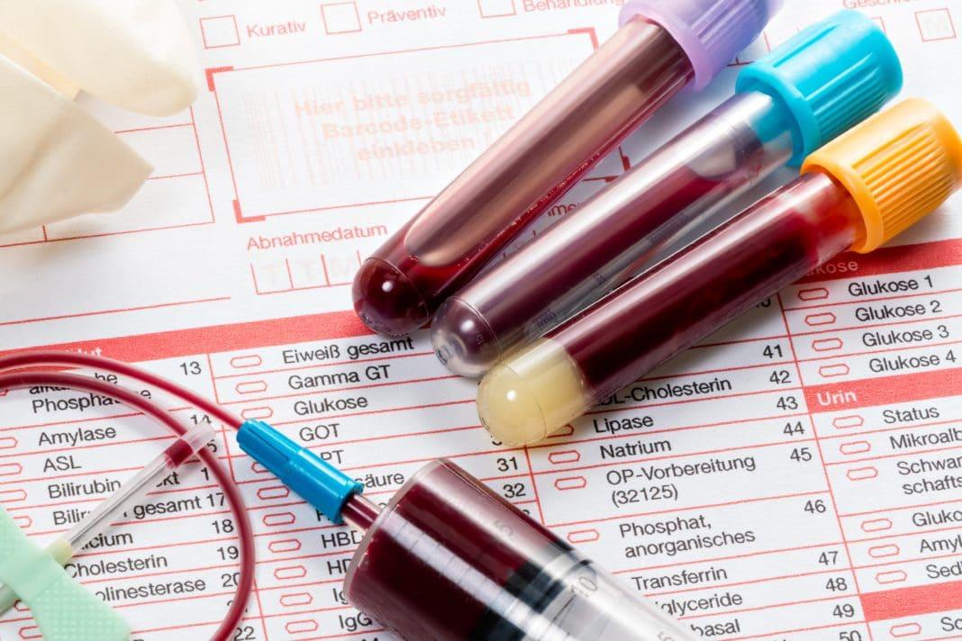 Serolojik test 2