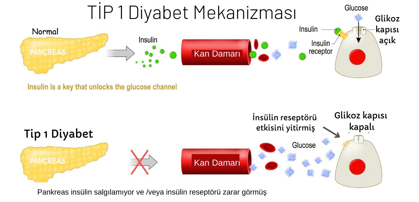 Tip 1 diyabet