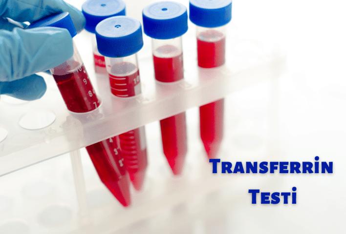 Transferrin Testi
