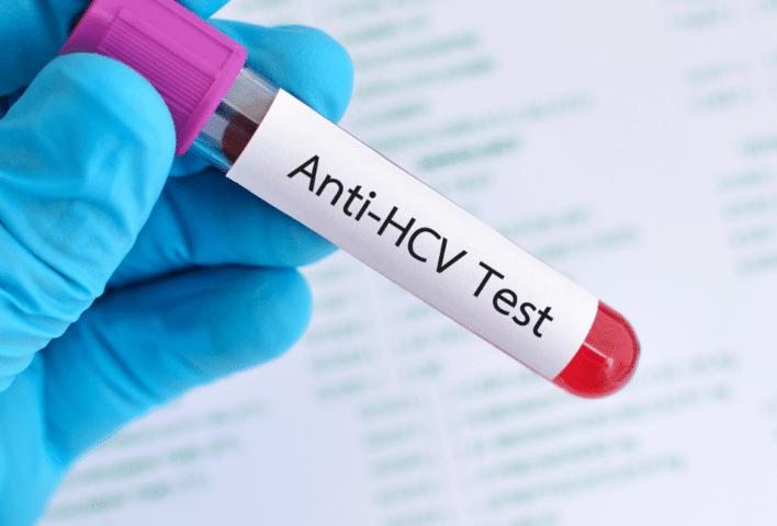 Anti HCV Testi